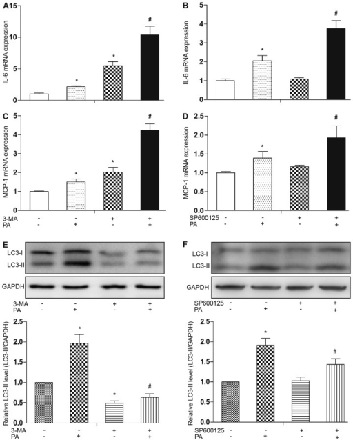 Autophagy limits palmitate (PA)-induced inflammatory cytokine expression. Mature 3T3-L1 adipocytes were pre-treated with or without 3-methyladenine (3-MA) (10 mM) or SP600125 [c-Jun N-terminal kinase (JNK) inhibitor, 10 μM] for 1 h, followed by treatment with PA (0.5 mM) for 12 h. (A-D) mRNA expression levels of monocyte chemoattractant protein-1 (MCP-1) and interleukin-6 (IL-6) were analyzed by qPCR. (E and F) Western blot analysis and quantification of protein expression was performed using LC3 antibodies. Data are presented as the means ± SEM of 3 to 5 separate experiments. *P<0.05 vs. control group (0.5% BSA); #P<0.05 vs. PA-treated group.