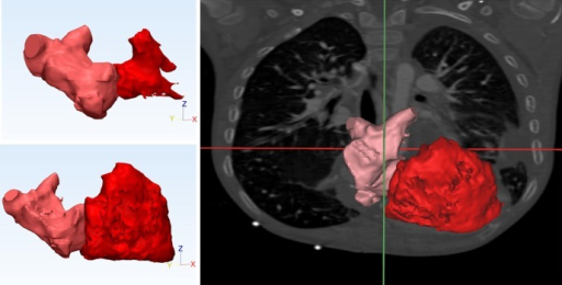 3D model of The neo-pulmonary venous (supra-tricuspid) chamber with four pulmonary veins open in a relatively large posterior chamber communicating freely with an equally large anterior chamber which lacks an appendage (top, left: during ventricular end-systole; bottom, left and right: during ventricular end-diastole).