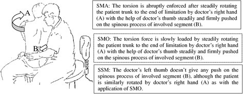 Chart of Feng's Spinal Manipulative Therapy (FSM). See the difference among the spinal manipulation (SMA), spinal mobilization (SMO) and sham spinal manipulation (SSM).