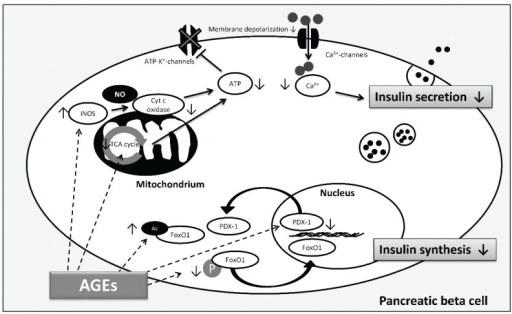 AGE-induced pathways involved in β cell dysfunction according to [98,100,102,103]. Decreased insulin synthesis and reduced insulin secretion are both involved in β cell failure contributing to hyperglycemia. AGEs reduce phosphorylation (P) and induce acetylation (Ac) of FoxO1, thus, FoxO1 translocates into the nucleus and is protected against proteasomal degradation, respectively. In addition, AGEs induce PDX-1 translocation into the cytoplasm and decrease PDX-1 protein expression, finally affecting insulin gene transcription and insulin synthesis. Regarding insulin secretion, AGEs cause inhibition by activation of iNOS and consequent blocking of cytochrome c oxidase activity and ATP depletion. Moreover, AGEs decrease insulin secretion through alterations in the TCA cycle which limits ATP production. ATP depletion inhibits closure of ATP-dependent potassium channels which leads to reduced membrane depolarization and decrease of intracellular calcium concentration inhibiting insulin secretion. (Arrows illustrate direct interactions; dashed arrows illustrate possible targets of AGEs).