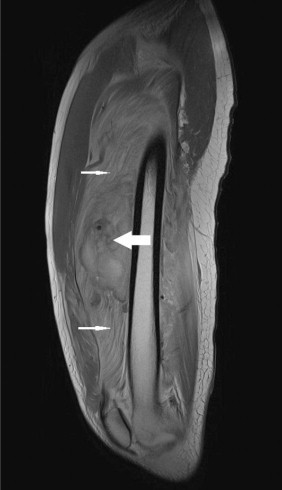 MRI of the right thigh (sagittal view) showing grossly swollen vastus intermedius muscle (small arrows) and a large hematoma displacing surrounding structures (large arrow).