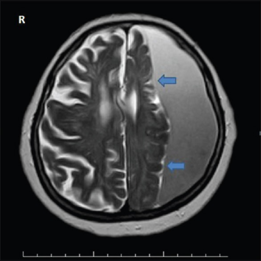 Axial T2-weighted magnetic resonance imaging image showing left frontoparietal chronic subdural hematoma which is hyperintense according to brain parenchyma. Arrow shows the cortical membrane