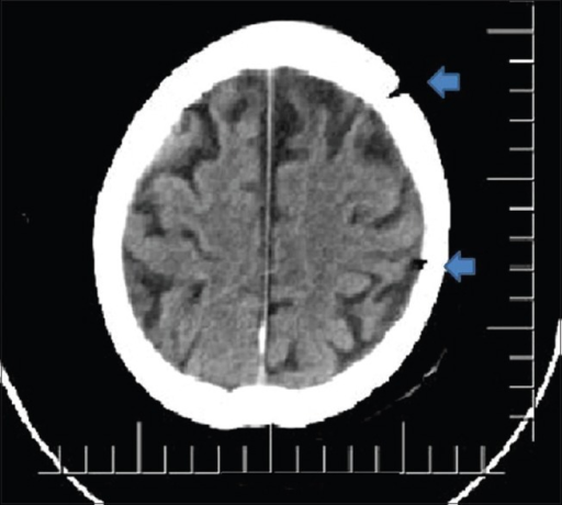 Postoperative axial nonenhanced computerized tomography scan shows reexpansion of brain parenchyma without any residual/recurrent subdural hematoma and arrows show craniotomy defects