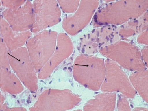 Hematoxylin and eosin stain of rotator muscle tissue from an adolescent idiopathic scoliosis patient showing areas of muscular necrosis and nuclear centralization.