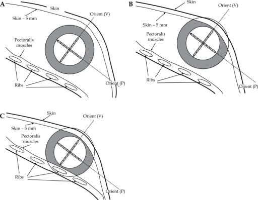 "Schematic diagrams for three possible geometries of skin and rib relative to the single lumen MammoSite® balloon. Eight rectangles inside the balloon represent eight possible dwell positions for an 192Ir source along the catheter. A) Balloon is located more than 1 cm away from the volume of (skin –5 mm) and pectoralis muscles. The shape of PTV_EVAL is a spherical shell with 1 cm thickness denoted with gray color. B) Skin spacing is less than 0.7 cm and the volume of (skin –5 mm) is excluded from the spherical shell. Hence, the shape of PTV_EVAL is a spherical shell excluding the cap in skin side. C) The (rib + pectoralis muscle) spacing is also less than 0.7 cm and the volume is also excluded from the spherical shell. Hence, the shape of PTV_EVAL is a spherical shell excluding both caps in skin and rib sides. In all diagrams, two extreme balloon insertion orientations are displayed: one is vertical ""Orient (V)"" and the other is parallel ""Orient (P)"" to the skin and rib"