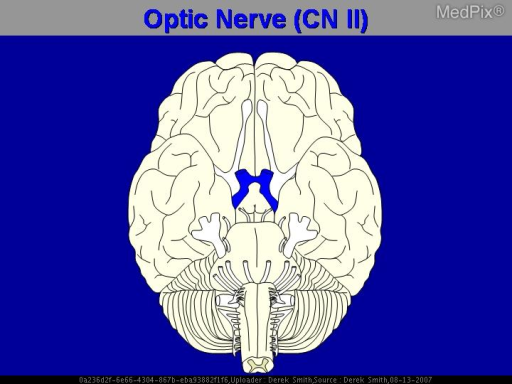 "Diagram of the optic nerve and chiasm.  These X-shaped structures look like the Greek letter X (""chi"" - pronounced ""Kai"")."