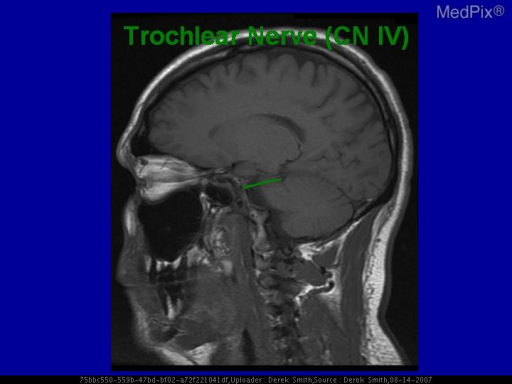 Diagram of course of the trochlear nerve.