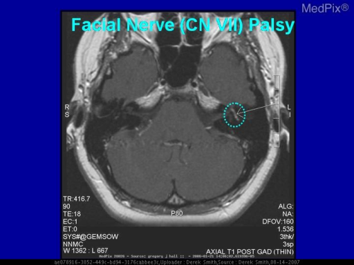 There is abnormal enhancement of the facial nerve, within the petrous bone.  If not enlarged, this nerve enhancement could represent a viral neuritis - like Bell's Palsy.  However, an enlarged nerve may be a Schwannoma.