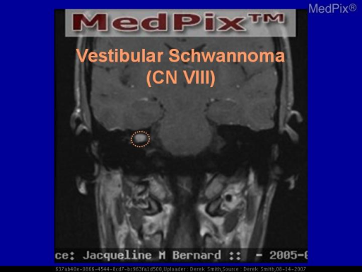 There is an abnormally large and enhancing mass within the right internal auditory canal.  The most common location for an intracranial Schwannoma, is the inferior division of the vestibular nerve, inside this canal.