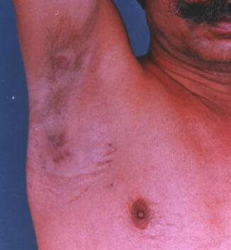 Clinical photograph showing right axillary fullness and skin nodule