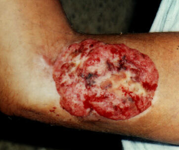 Clinical photograph showing recurrent sweat gland adenocarcinoma on the arm.