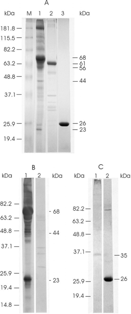 Analysis of purified ISAV and GST proteins in Western blots. The prestained protein standards (Invitrogen Life Sciences) are drawn in on the left while corresponding molecular masses of proteins are indicated on the right. (A) Coomassie blue-stained gel of the proteins. Lane M contains the prestained protein standards. Lanes 1 to 3 contain purified ISAV, GST-7ORF1 fusion protein inclusion bodies, and GST protein, respectively. (B) Western blots reacted with rabbit antiserum to whole ISAV. Lanes 1 and 2 contain purified ISAV and GST protein, respectively. (C) Western blots reacted with rabbit antiserum to GST-7ORF1 fusion protein. Lanes 1 and 2 contain purified ISAV and GST protein, respectively.