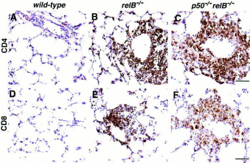 Immunohistochemical  detection of T cells in lungs from  20-d-old wild-type, relB−/−,  and p50−/−relB−/− mice. (A–C )  Lung sections stained with an  mAb specific for CD4+ T helper  cells. (D–F ) Lung sections stained  with an mAb specific for CD8+  cytotoxic T cells. (A and D)  Wild-type control; (B and E )  relB−/− single mutant; (C and F )  p50−/−relB−/− double mutant.  Bars, 50 μm.
