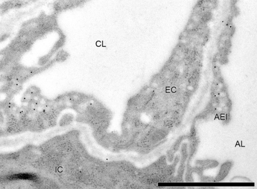Immuno TEM of rat lung labeled for caveolin-1. Caveolae are cholesterol-rich regions of the plasma membrane involved in endocytosis. One of the constituting proteins of caveolae is caveolin-1 which was labeled here using newborn rat lung tissue fixed by instillation of 4% PFA, 0.1% GA in 0.2 M Hepes buffer. After freeze-substitution and embedding in acrylic resin (Table 1), ultrathin sections (40–70 nm) were cut and mounted on formvar-coated Ni mesh grids. Immunogold labeling was performed according to standard protocols [99]. The primary antibody was a rabbit anti-caveolin-1 antibody (BD Biosciences, Pharmingen, Germany) diluted 1:50. The secondary antibody was a goat-anti-rabbit antibody coupled to 10 nm gold particles (British Biocell, Cardiff, United Kingdom). A strong signal is found for caveolae in capillary endothelium and alveolar epithelium. Unspecific background labeling was weak (note the gold particle in the interstitium) but not completely absent. Immunogold labeling requires good knowledge about the biology of the target antigen and the specificity of the antibody. Before going to the TEM level, one is well advised to perform pilot light microscopic experiments. CL = Capillary lumen; EC = Endothelial cell; IC = Interstitial cell; AEI = Alveolar epithelial type I cell; AL = Alveolar lumen. Bar = 1 μm.