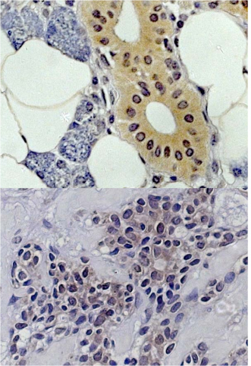 hBD-2 staining in healthy salivary gland tissue (above) and adenoid cystic carcinoma (below).