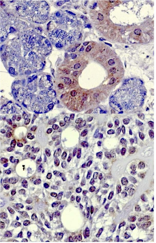 hBD-3 staining in healthy salivary gland tissue (above) and adenoid cystic carcinoma (below).