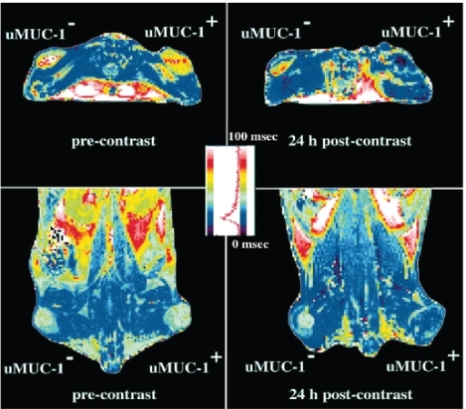 T2 maps of the mice bearing underglycosylated mucin-1 antigen (uMUC-1)- positive (LS174T) and uMUC-1-negative (U87) tumors. Transverse (top) and coronal (bottom) images showed a significant (52%; P < 0.0001) decrease in signal intensity in uMUC-1-positive tumors 24 hrs after administration of the CLIO-EPPT probe. Copyright © 2004. Reproduced with permission from Moore A, Medarova Z, Potthast A, et al 2004. In vivo targeting of underglycosylated MUC-1 tumor antigen using a multimodal imaging probe. Cancer Res, 64:1821–7.