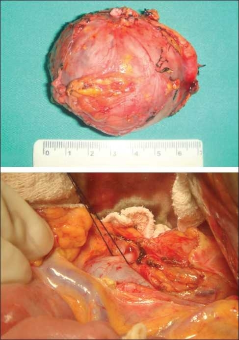 (a) Adrenal tumor and (b) adrenal vein
