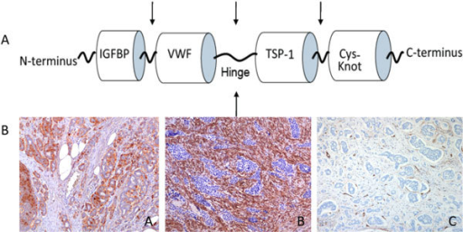 A: Full length CTGF contains 4 modules: insulin-like growth factor binding protein-like (IGFBP), von Willebrand factor type-C repeat (VWF), thrombospondin type 1 repeat (TSP-1) and C-terminal cystine knot (cys-knot). Arrows indicate potential cleavage sites. B: Ileal carcinoid tissue immunostained with antibodies to CTGF (A), α-SMA (B) and CD31/CD34 (C) identifies vascular endothelial cells demonstrating typical tumour cell IR for CTGF and stromal expression of α-SMA detected both in myofibroblasts and in vascular smooth muscle cells.