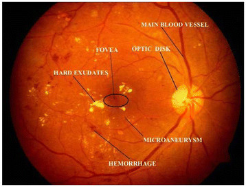automated diabetic retinopathy detection system Objective —to evaluate the performance of a system for automated detection of diabetic retinopathy in digital retinal photographs, built from published algorithms, in a large, representative, screening population research design and methods —we conducted a retrospective analysis of 10,000 consecutive patient visits, specifically exams.