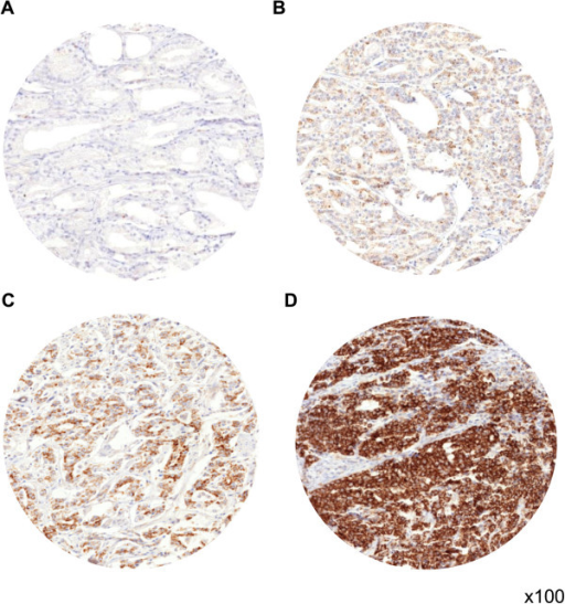 Representative pictures of (A) negative, (B) weak, (C) moderate, and (D) strong MTC02 immunostaining in prostate cancer.