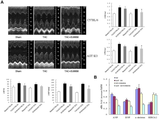 In vivo analyses of the cardiac function by echocardiography and hemodynamic measurements.Both AGT KO mice and the C57BL/6 WT littermates were pretreated with or without Src kinase inhibitor (SU6656), followed by TAC for 2 weeks. (A) Quantifications of LVAWd, LVPWd, LVEF and LVESP by representative M-mode tracing and hemodynamic recording from five mice. (B) Quantifications of cardiac immediate-early response genes in C57BL/6 mice and AGT KO mice with or without pretreatment of SU6656 (n = 5 separated experiments). * P<0.05 vs. saline-treated TAC-operated AGT KO mice.
