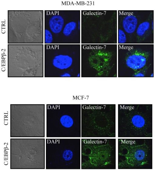 Protein expression of galectin-7 in breast cancer cell lines.MCF-7 or MDA-MB-231 cells were transfected with an expression vector encoding C/EBPβ-2 before cell fixation and permeabilization. A goat anti-human galectin-7 polyclonal antibody was used in combination with an Alexa Fluor 488-conjugated donkey anti-goat IgG to detect endogenous galectin-7 (green). Nuclei were stained with DAPI (blue).