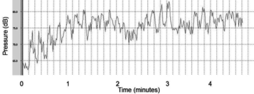 Equivalent Sound Level of Classical Musical Auditory Stimulation (dB: Decibel)