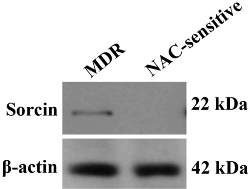 Western blot analysis of sorcin and β-actin expression in sample serum from breast cancer patients who were NAC-sensitive or who developed multidrug resistance, versus normal subjects. NAC, neoadjuvant chemotherapy; MDR, multidrug resistant.