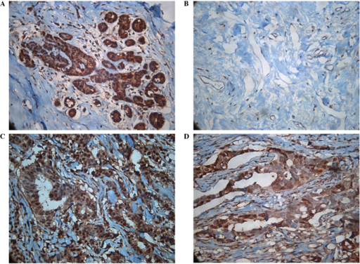 Validation of sorcin expression of infiltrating ductal breast cancer tissues by immunohistochemical staining. (A) Representative biopsy taken from patients who responded effectively to neoadjuvant chemotherapy, showing low sorcin expression. (B) Biopsy of the same patient following chemotherapy. (C) Representative biopsy taken from patients who did not respond to neoadjuavnt chemoptherapy, prior to chemotherapy. (D) Biopsy of the same patient following chemotherapy. Staining is evident in the cytoplasm, which is represented on the figure with dark brown color. Magnification ×200.