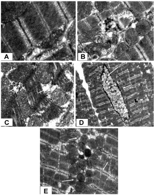 Photomicrograph showing the ultrastructural changes in the rat myocardium.(A) represents transmission electron microscope [(TEM) ×4800] in diabetic sham group, B diabetic ischaemia/reperfusion (I/R) group (TEM ×3500), (C) diabetic I/R + hesperidin treatment (100 mg/kg) (TEM ×3500), (D) diabetic I/R + GW9662 (1 mg/kg) (TEM ×3500) and (E) diabetic I/R rats + GW9662 + hesperidin (TEM ×3500).