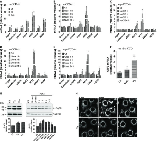 ER stress is transiently induced by NaCl. (A) mRNA abundance of ER‐stress responsive genes in mCCDcl1 cells challenged or not (Ctl) with thapsigargin (Tg, 1 μmol/L) or tunicamycin (Tun, 3 μmol/L) for 6 h. (B–E) mRNA abundance of ER‐stress responsive genes in mCCDcl1 (B and D) and mpkCCDcl4 (B) cells challenged or not with NaCl (500 mOsmol/kg, B and C) or urea (500 mOsmol/kg, D and E) for 1–24 h. Data is represented as fold difference over non‐stimulated cells and is expressed as the mean ± SEM of four independent experiments. (F) mRNA abundance of ATF3 in microdissected CCD challenged or not (Ctl) with NaCl (500 mOsmol/kg) or Tg (1 μmol/L) for 3 h. Data is represented as fold difference over non‐stimulated CCD and is expressed as the mean ± SEM of data from at least six animals. (G) Western blot analysis of Grp78 protein in mCCDcl1 cells challenged or not (Ctl) with NaCl, Tg or Tun for 6 h (left panel) or NaCl for 10 min to 24 h (right panel). Data is represented as fold difference over non‐stimulated cells and is expressed as the mean ± SEM of three independent experiments. Representative Western blots are shown. GAPDH was used as a loading control. (H) Confocal maximum projections of mCCDcl1 cells loaded with ER‐Tracker Red challenged or not (0 min) with NaCl or Tg for 2 or 25 min. Shown are representative images of three similar experiments. Arrows depict the transient appearance of spherical clusters by NaCl. Bar, 10 μmol/L.