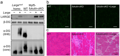 Systemic gene transfer of Large into Myf5-fukutin cKO mice after onset.AAV9-MCK-Large was administered to 4-week-old Myf5-fukutin cKO mice via tail vein injection; after 2 months, the skeletal muscles were harvested and analysed for α-DG glycosylation (a, b) and histology (c). Although LARGE was expressed (a), the levels of α-DG glycosylation were unchanged in AAV-treated Myf5-fukutin-cKO mice (a, b). H&E staining for the tibialis anterior muscle did not show improvement of the muscular dystrophic phenotype of Myf5-fukutin-cKO mice (c). WT, litter control mice (fukutinlox/lox without cre-transgene); fukutin-cKO, untreated Myf5-fukutin-cKO mice; and fukutin cKO + Large, Myf5-fukutin-cKO mice with AAV9-MCK-Large treatment. Bar = 50 μm. The full-length blots with α-DG (IIH6), α-DG (core), LARGE, and β-DG are presented in Supplementary Figure S2e-h, respectively.