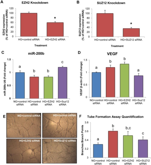 HRMECs treated with SUZ12 siRNA demonstrate increased miR-200b expression, decreased VEGF expression and decreased endothelial branching.A,B: Gene knockdown of EZH2 and SUZ12 was confirmed by qPCR. C,D: In HRMECs transfected with EZH2 siRNA in HG, miR-200b and VEGF were not significantly different from HG+control siRNA but decreased compared to NG+control siRNA. In HRMECs transfected with SUZ12 siRNA in HG, miR-200b was significantly increased with decreased levels of VEGF compared to HRMECs transfected with control siRNA, with levels similar to NG+control siRNA. E,F: Tube formation assay to measure endothelial branching. HRMECs transfected with HG+control siRNA demonstrated significantly increased branching compared to NG+control siRNA. Transfection of EZH2 siRNA did not reduce endothelial branching significantly compared to HG+control siRNA. However, transfection of SUZ12 siRNA significantly reduced endothelial branching compared to HG+control siRNA. [NG+control siRNA = 5mM D-glucose + 100nM control siRNA, HG+control siRNA = 25mM D-glucose + 100nM control siRNA, HG+EZH2 siRNA = 25mM D-glucose + 100nM EZH2 siRNA, HG+SUZ12 siRNA = 25mM + 100nM SUZ12 siRNA; identical letters represent groups that are not significantly different; p < 0.05; n = 6; data expressed as mean ± SEM, normalized to U6 or β-actin and expressed as a fold change of NG+control siRNA].