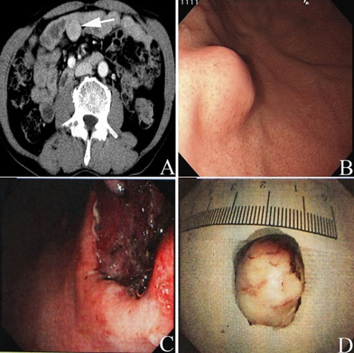Preoperative abdominal enhanced CT scan showed a mass (white arrow in A) with a size of 3.5cm×3 cm located in the abdominal cavity in one patient with rectal cancerUpper gastrointestinal endoscopy presented an intramural lesion (B) located in the body of the patient with GIST of the stomach synchronous with a small carcinelcosis located in the antrum of the stomach. Tumor complete resection was obtained through the endoscopic view (C) Image of the tumor resected through endoscopic resection; the tumor size was lower than 2 cm (D).