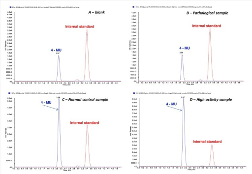 Total Ion Chromatogram profiles of 4-MU at constant concentration of internal standard obtained with TripleQuad MRM-MSforA—a blank sample or filter paper incubated in the same manner as the blood samples (that contain 4-MU present at the beginning of the enzymatic reaction as a byproduct of the synthesis); B—pathological blood sample (with similar TIC profile as the blank sample, used as a quality control in each assay); C—a normal activity blood sample (healthy control with an average GALNS activity used as a quality control in each assay); D—a high activity blood sample (a sample with atypically high activity of lysosomal enzymes).