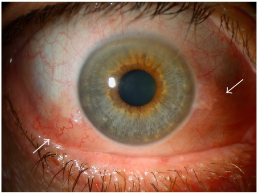 Chemosis. Notice the conjunctiva separated from the sclera and behind the grey line (arrows) and diffuse conjunctival redness.