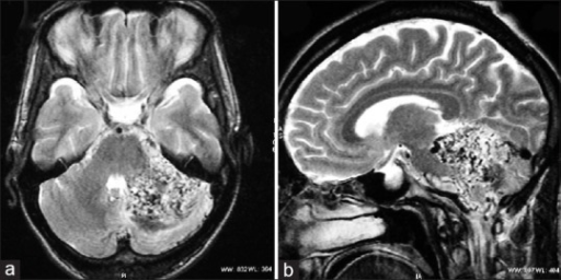 T2-weighted magnetic resonance imaging of brain (a) axial, (b) sagittal showing a diffuse network of vascular channels and dilated veins with intermingled normal brain tissues between different vascular territories on the left cerebellar hemisphere, which extend to the left para-pontine, quadrigeminal and arachnoid cistern. A small intraparenchymal hemorrhage is seen in posterior aspects of the left cerebellar hemisphere