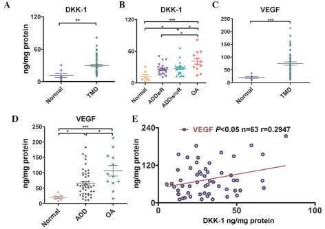 Elevated expression levels of dickkopf-related protein 1 (DKK-1) are associated with increased expression levels of vascular endothelial growth factor (VEGF) in the synovial fluid of patients with temporomandibular joint disorder (TMD). (A) The expression levels of DKK-1 in both the control group (n=7) and TMD group (n=56); **P<0.01; Student's t-test. (B) The expression levels of DKK-1 in the control group (n=7) and the following patient groups: The anterior disc displacement with reduction (ADDwR, n=22), the anterior disc displacement without reduction (ADDw/oR, n=22), and the osteoarthritis (OA, n=12) group [*P<0.05, and ***P<0.001; two-way analysis of variance (ANOVA)]. (C) The expression levels of VEGF in both the control group (n=7) and TMD group (n=56 samples); ***P<0.001; Student's t-test. (D) The expression levels of VEGF in the control group (n=7) and the following patient groups: The anterior disc displacement (ADD, n=44) and the OA group (n=12) (*P<0.05, and ***P<0.001; two-way ANOVA). (E) Association between the expression levels of DKK-1 and VEGF, as determined by a Pearson correlation test.