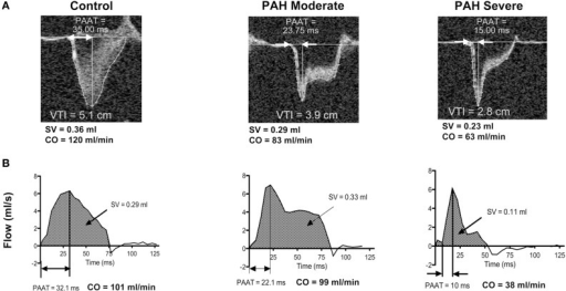 Representative echocardiography (A), MRI (B) pulmonary artery flow in controls and experimental rats with moderate and severe pulmonary hypertension. VTI, velocity time integral; PAAT, pulmonary artery acceleration time; SV, stroke volume; CO, cardiac output. Modified from Urboniene et al. (2010) Figure 2 with permission.