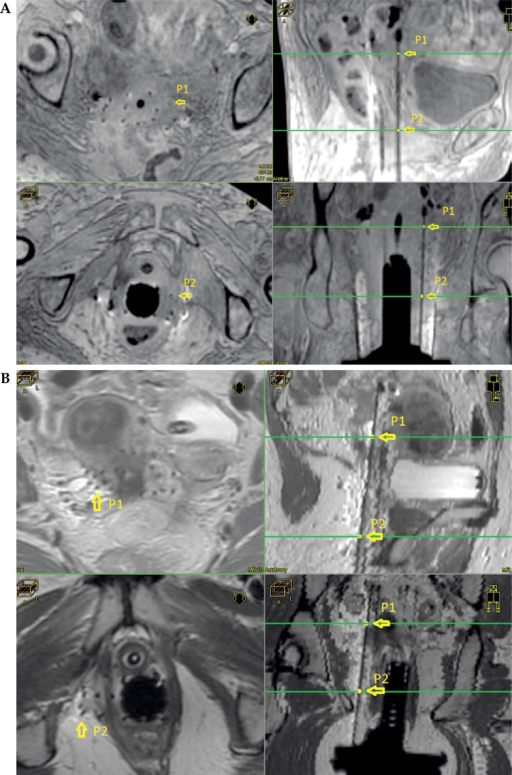 A) 3D T1W MRI images showing two different paraxial slices (left) and the choice of two points to determine the direction of one needle. Upper right and lower right show the position of points P1 and P2 in parasagittal and para-coronal views, respectively. B) T2 MRI images showing two different paraxial slices (left) and the choice of two points to determine the direction of one needle. Upper right and lower right show the position of points P1 and P2 in para-sagittal and para-coronal views, respectively