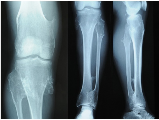 Radiographs of the right knee joint showing osseous projection.
