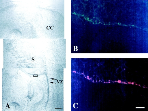 Double immunofluorescence microscopy showing  the colocalization of δ-catenin  with β-catenin in neocortical  neuroepithelia of postnatal day 2  mouse brain. (A) Low magnification view in which the rectangle shows the location of the immunofluorescent images in B  and C. CC, cerebral cortex. VZ,  ventricular zone. S, striatum.  Bar, 0.3 mm. (B) Frozen sagittal  section stained by rAb62. (C)  Same section immunostained by  mouse monoclonal anti–β-catenin. Bar, 20 μm.