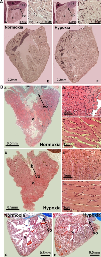Histological changes of zebrafish and cichlid hearts after exposure to chronic constant hypoxia. a shows zebrafish hearts that were dissected, sectioned and stained with a hematoxylin–eosin staining with A, B and E representing normoxic and C, D and F hypoxic conditions. Cell nuclei are seen in dark (dark blue in online version) and cell cytoplasm in light (pink in online version). Pictures A, C, E and F have the same magnification (10×). Images B and D represent a 20× magnification of cardiac muscle (D). Abbreviations used are: a atrium; v ventricle; vo ventricular outflow tract and ca conus arteriosus. b (A–F) corresponds to sections of cichlid hearts, which were treated the same way as the ones above from zebrafish and G and H show cichlid hearts which have been perfused prior to dissection and were stained with either hematoxylin–eosin (A–F) or Azan blue (G, H). In A, B, C and G pictures of normoxic conditions are shown and D, E, F and H represent the corresponding hypoxic conditions. Similar results for both the zebrafish and the cichlid hearts were observed in three independent experiments