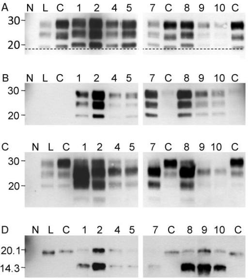 bovine spongiform encephalopathy biochemistry The normal prion protein transmission of bovine spongiform encephalopathy to humans was reported in the uk biochemistry: western blotting.