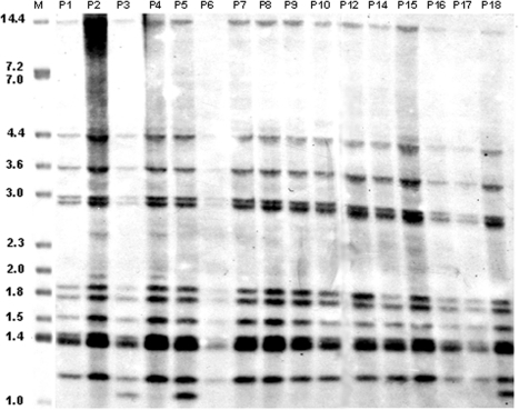 IS6110 restriction fragment length polymorphism (RFLP) analysis of Mycobacterium tuberculosis isolates from 16 patients associated with the multidrug-resistant tuberculosis outbreak, Bizerte, Tunisia, 2001–2004. Lane M, reference strain MTB14323. Values above each well correspond to each patient as identified in Table 1. Values on the left are in kilobases.