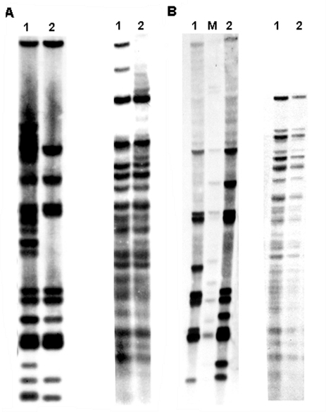 A) IS6110 restriction fragment length polymorphism (RFLP) analysis (left) and polymorphic GC-rich repetitive sequence (PGRS) typing (right) of patient P11. Lane 1, initial isolate; lane 2, follow-up isolate. B) IS6110 RFLP (left) and PGRS typing (right) of patient P20 (lane 1) compared with patient P3 (lane 2), a typical outbreak-associated patient. Lane M, reference strain MTB14323.