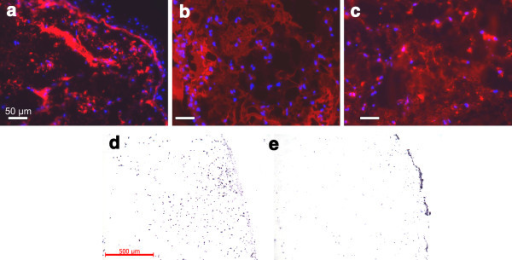 Immunohistochemistry staining and species specific genomic in situ hybridization of an implanted hydrogel upon harvest. A: Detection of collagen type I; B: collagen type II; C: aggrecan by immunohistochemistry. The blue dots are the DAPI stained nuclei. Note the even distribution of the nuclei across the samples, except for the edge in A. Species specific in situ hybridization discriminates between cells of human origin (D) and cells of murine origin (E). Mouse cells are predominantly found at the edge of the xenotransplant, human cells are distributed evenly within the transplant.