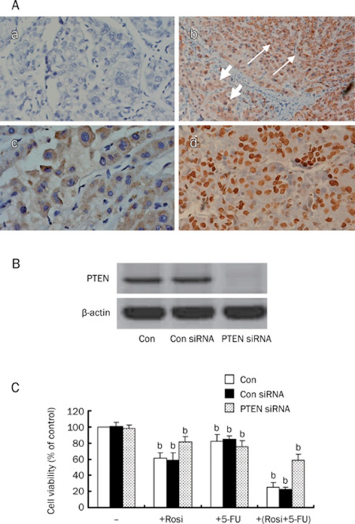 Representative sections showing PTEN protein expression by immunohistochemical staining. (A-a) a negative control section of HCC (primary antibody substituted with PBS, original magnification, ×200); (A-b) the positive staining of PTEN was mainly observed in the cytoplasm of cells. The strong staining of PTEN protein was shown in paracancerous tissue (the long arrow), and the weak staining was shown in tumor tissue (the short arrow, original magnification, ×100); (A-c) PTEN protein was expressed in the cytoplasm of carcinoma cells (original magnification, ×200); (A-d) PTEN protein was expressed in the nuclei of carcinoma cells (original magnification, ×200); (B) Cellular protein was isolated from BEL-7402 cells transfected with control or PTEN siRNA for 48 h and was then subjected to Western blotting analysis for PTEN protein. PTEN siRNA inhibits PTEN protein expression. (C) BEL-7402 cells were transfected with control or PTEN siRNA for 48 h before exposing the cells to rosiglitazone (30 μmol/L) in the presence or absence of 5-FU (10 μmol/L). Afterwards, the cell viabilities were determined by MTT assay up to 48 h. Data are expressed as the mean±SD of three independent experiments. bP<0.05 vs control group; Con, cells treated with 0.1% DMSO; Con siRNA, non-specific siRNA, as a negative control.