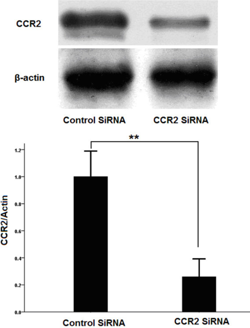 Effects of CC-chemokine receptor 2 (CCR2) siRNA on CCR2 expression in transfected cells. Primary cultured retinal microglia were treated with specific siRNA to knock down the expression of CCR2. Representative CCR2 knockdown was identified with western blot analysis with maximum downregulation of approximately 75%. Results are statistically significant (**p<0.01 Student t test).